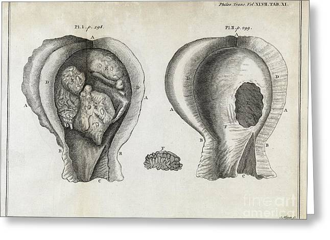 Fungal Bladder Infection, 18th Century Greeting Card by Middle Temple Library
