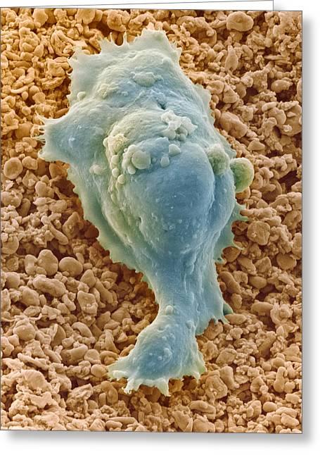 Human Embryonic Stem Cell, Sem Greeting Card