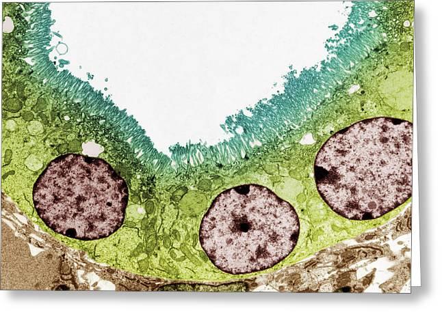 Kidney Tubule, Tem Greeting Card