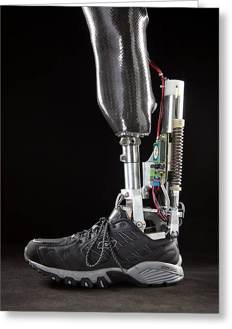 Prosthetic Greeting Cards - Motorized Springs In A Powered Ankle Greeting Card by Mark Thiessen