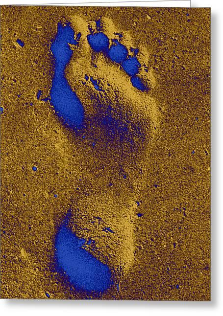 My Right Foot Greeting Card by Isaac Silman