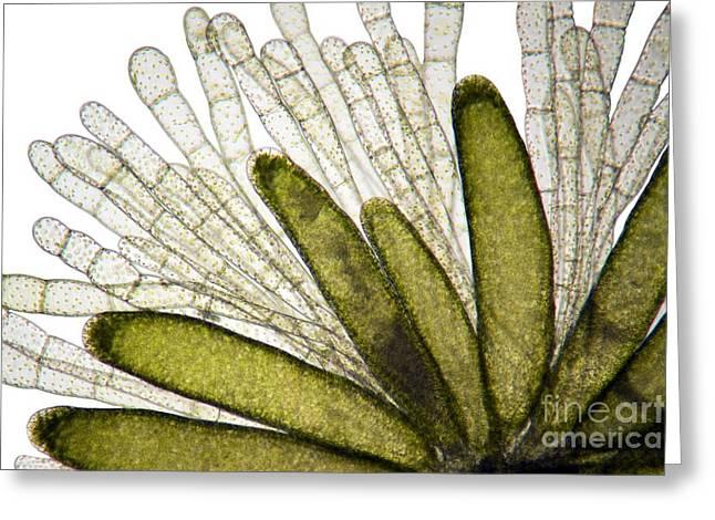 Mnium Moss, Light Micrograph Greeting Card