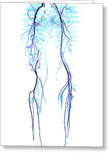 Atherosclerosis, Ct Angiogram Greeting Card by Living Art Enterprises