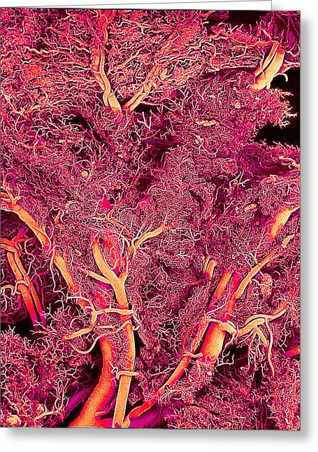 Blood Vessels, Sem Greeting Card by Susumu Nishinaga