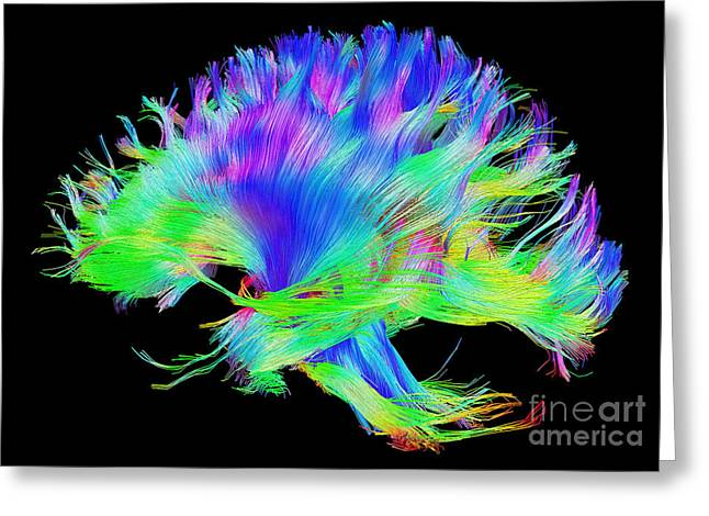 Fiber Tracts Of The Brain, Dti Greeting Card by Living Art Enterprises