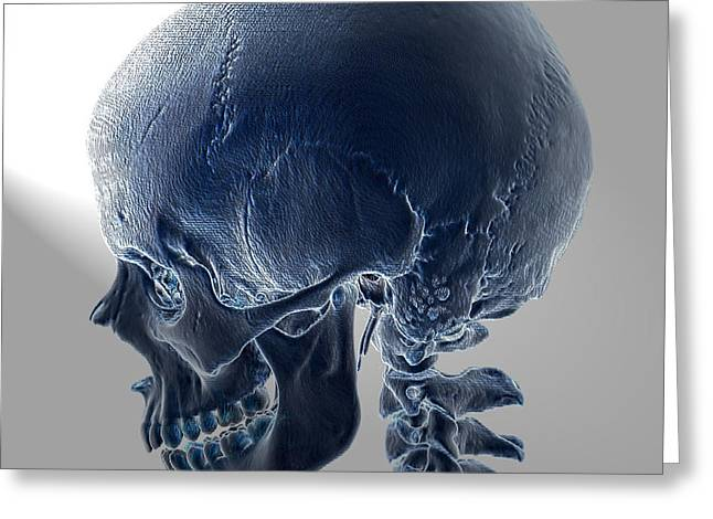 Normal Skull, 3d Ct Scan Greeting Card by Living Art Enterprises