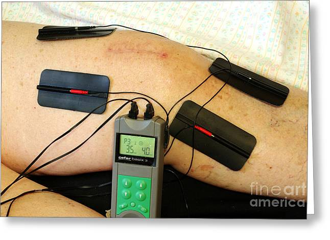 Transcutaneous Electric Nerve Greeting Card by Scimat