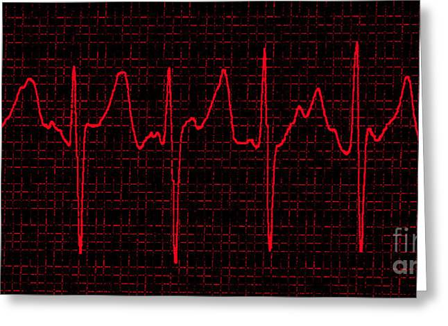 Atrial Fibrillation Greeting Card by Science Source