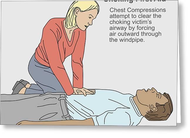 Choking First Aid Greeting Card by Gwen Shockey