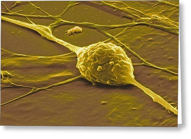Recently Sold -  - Scanning Electron Micrograph Greeting Cards - Granule Nerve Cell, Sem Greeting Card by David Mccarthy