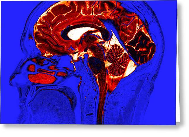 Normal Brain, Mri Greeting Card