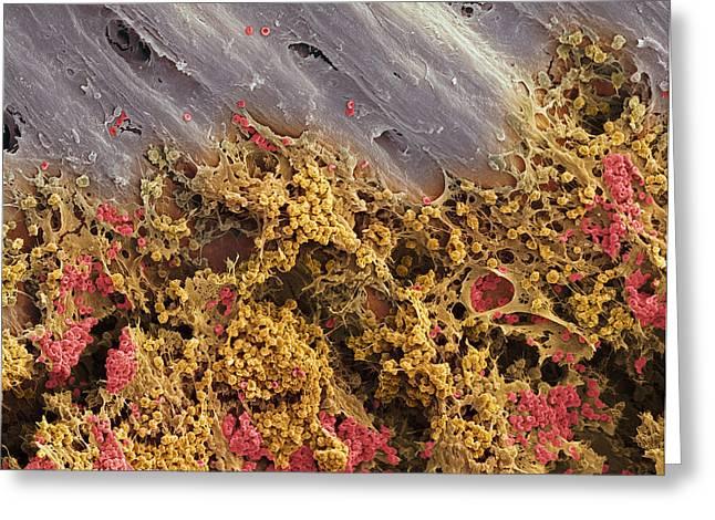 Bone Marrow, Sem Greeting Card by Steve Gschmeissner