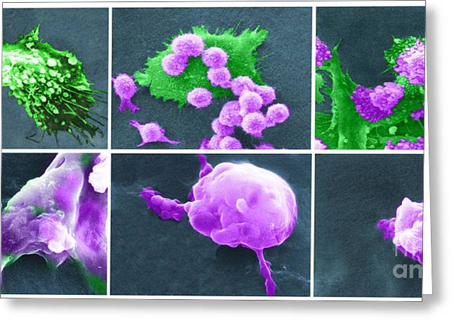 Cancer Cell Death Sequence, Sem Greeting Card by Science Source