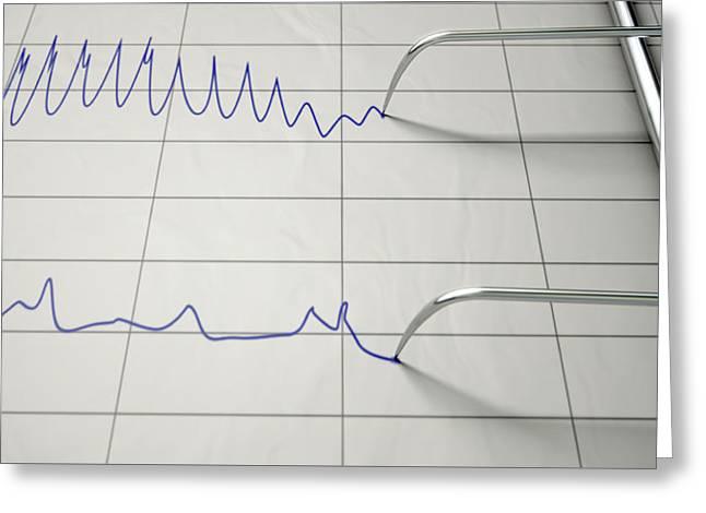 Lie Detector Test  Greeting Card