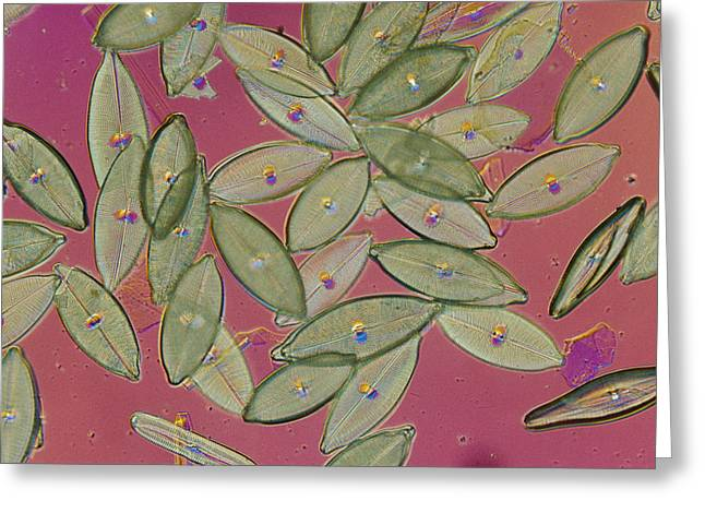 Diatom Greeting Cards - Close View Of Diatoms Greeting Card by Darlyne A. Murawski