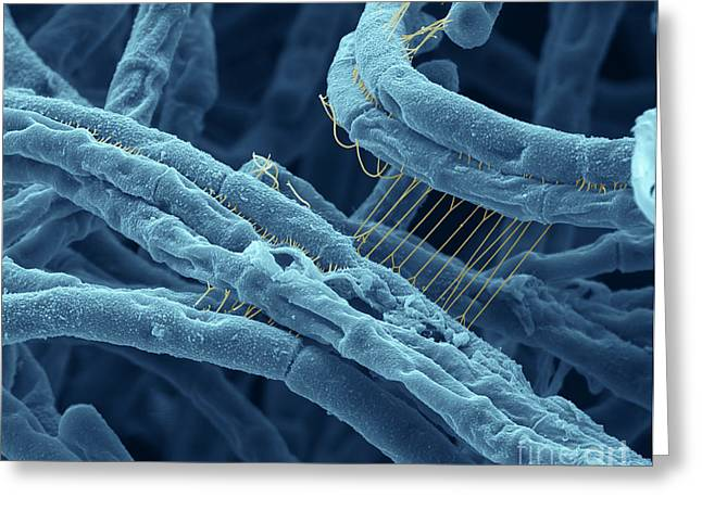 Bacillus Anthracis Greeting Cards - Anthrax bacteria SEM Greeting Card by Eye Of Science and Photo Researchers