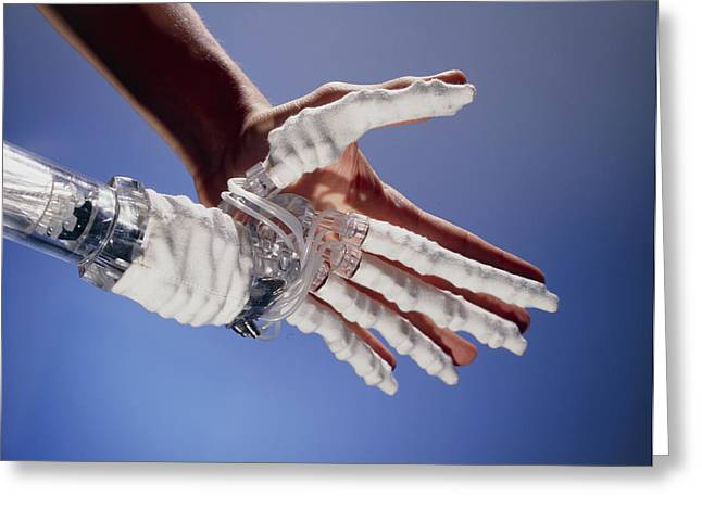 Artificial Hand Greeting Card by Volker Steger