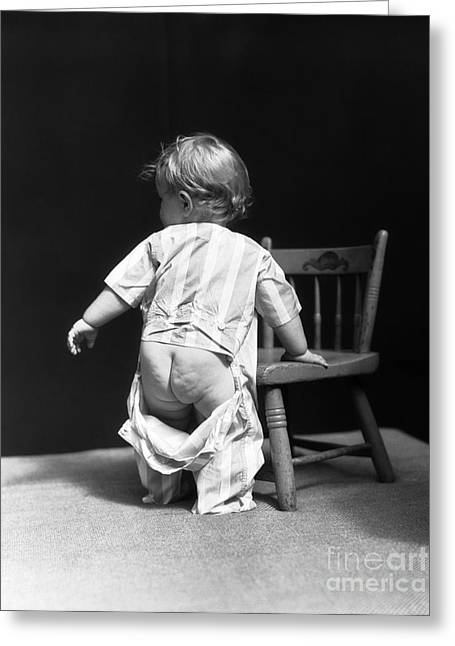 Baby With Unbuttoned Pajamas, 1930s Greeting Card