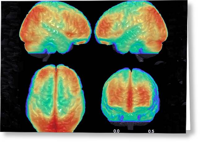 Bipolar Brain, 3d Mri Scan Greeting Card by Science Source