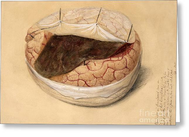 Blood Clot, Brain, Illustration 1869 Greeting Card by Wellcome Images