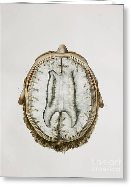 Brain And Corpus Callosum, 1844 Artwork Greeting Card by Spl
