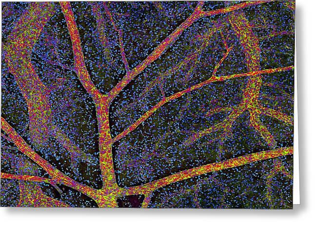 Brain Tissue Blood Supply Greeting Card by Thomas Deerinck, Ncmir