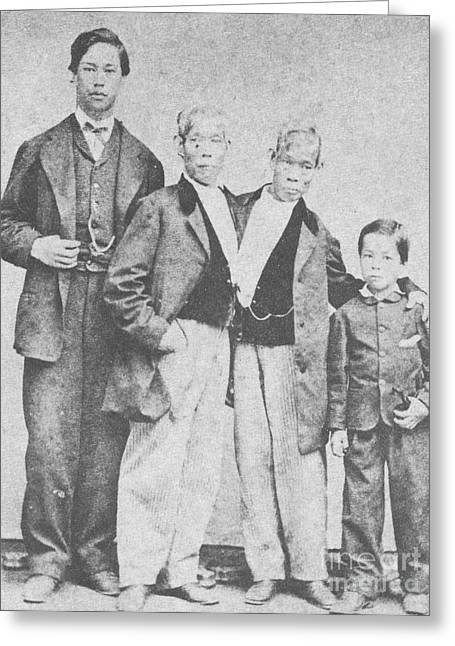 Father And Son Greeting Cards - Chang And Eng, Original Siamese Twins Greeting Card by Photo Researchers