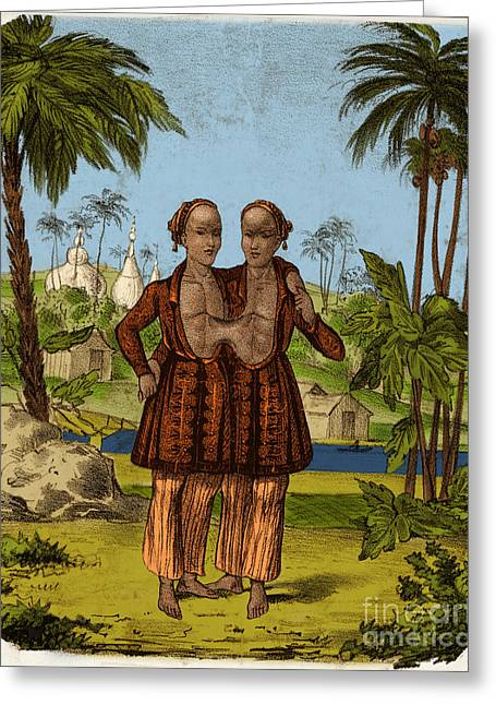 Chang And Eng, Siamese Twins Greeting Card by Science Source