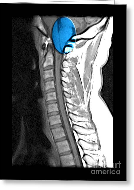 Chiari I Malformation And Syrinx Greeting Card by Living Art Enterprises and Photo Researchers