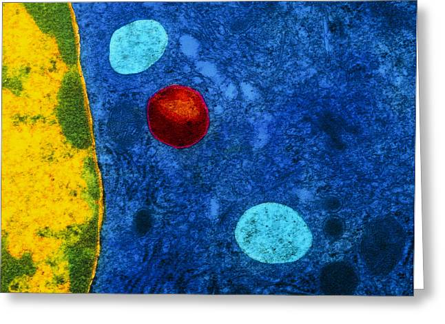 Colour Tem Of Primary Lysosome In Liver Cell Greeting Card by Cnri