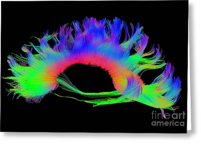 Corpus Callosum, Diffuse Tensor Imaging Greeting Card by Living Art Enterprises