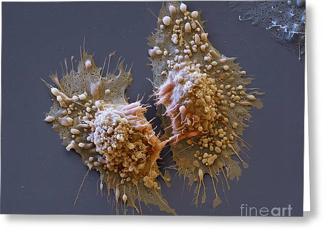 Dividing Cancer Cells, Sem Greeting Card