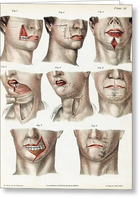 Facial Surgery, Illustration, 1846 Greeting Card by Wellcome Images