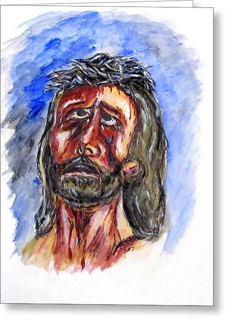 Father Forgive Them Greeting Card