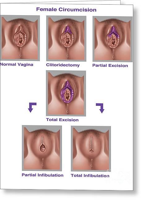 Female Genital Mutilation, Illustration Greeting Card by Gwen Shockey