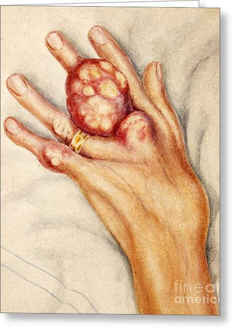 Left Hand With Tophus From Chronic Gout Greeting Card