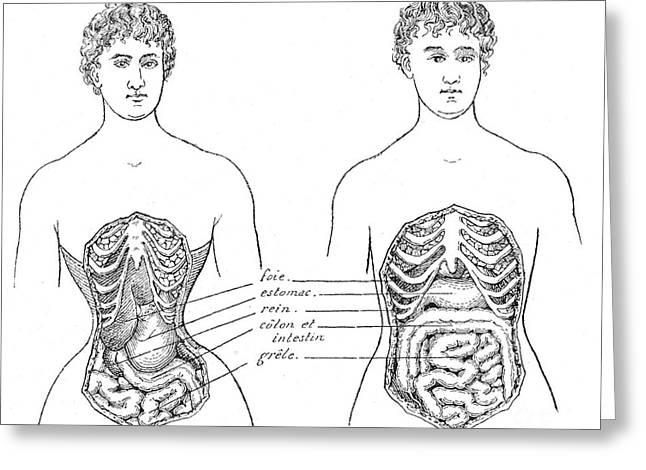 Medical Crimes Of The Corset, 1908 Greeting Card