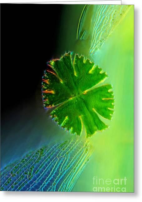 Micrasterias Apiculata Sphagnum Leaf Lm Greeting Card by Marek Mis