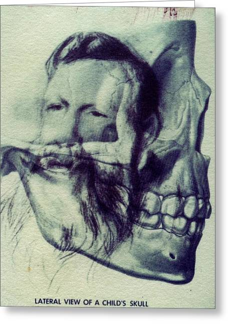 Polaroid Transfer Skull Anatomy Teeth Skeleton Beard Greeting Card