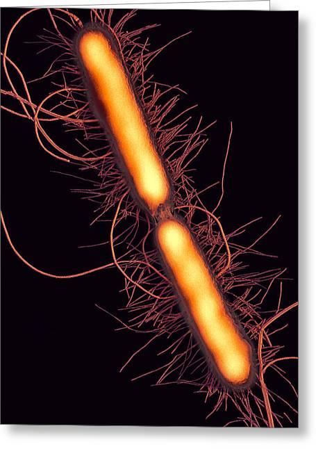 Proteus Vulgaris Bacteria, Sem Greeting Card by Thomas Deerinck, Ncmir