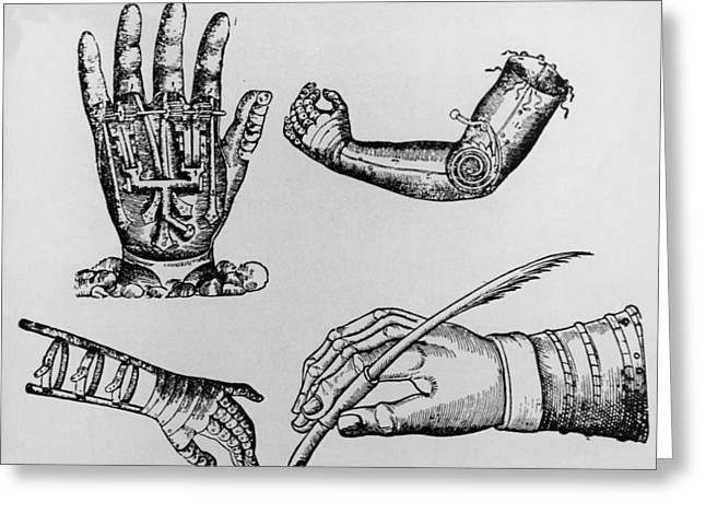 Selection Of 16th Century Artificial Arms & Hands. Greeting Card