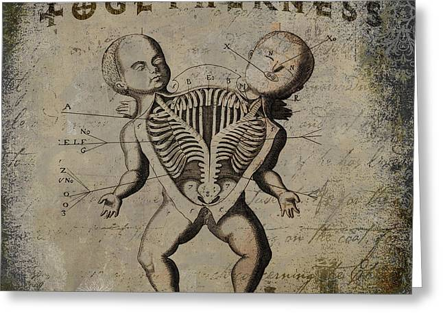 Siamese Twins Greeting Card by Mindy Sommers