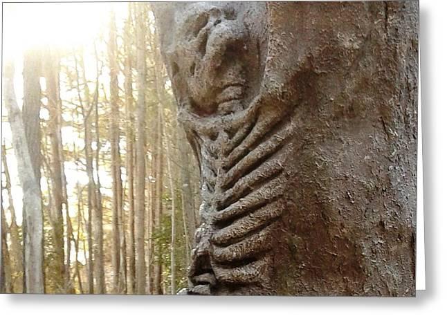 Skeleton Tree Greeting Card