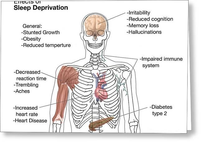 Sleep Deprivation Effects, Illustration Greeting Card