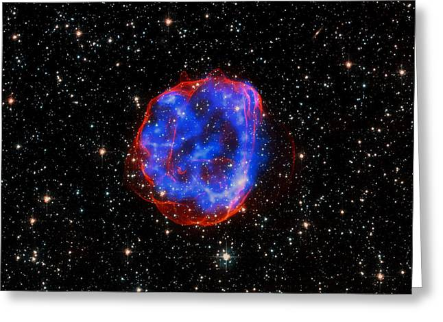 Star Explosion In The Large Magellanic Cloud Greeting Card by Mountain Dreams