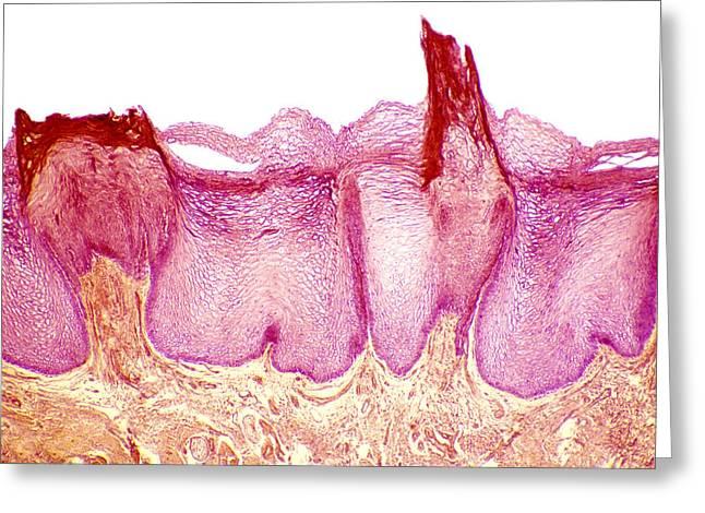 Tongue Papillae, Light Micrograph Greeting Card