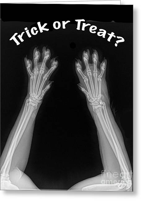 Greeting Card featuring the photograph Trick Or Treat by Bill Thomson