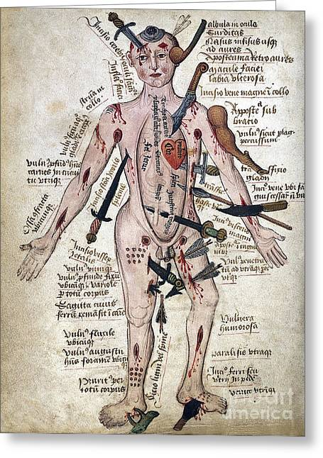 Wound Man, 15th Century Greeting Card by Wellcome Images