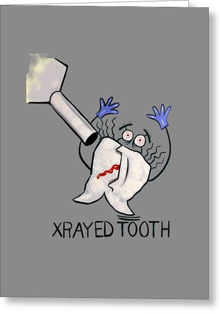Xrayed Tooth T-shirt Anthony Falbo Greeting Card