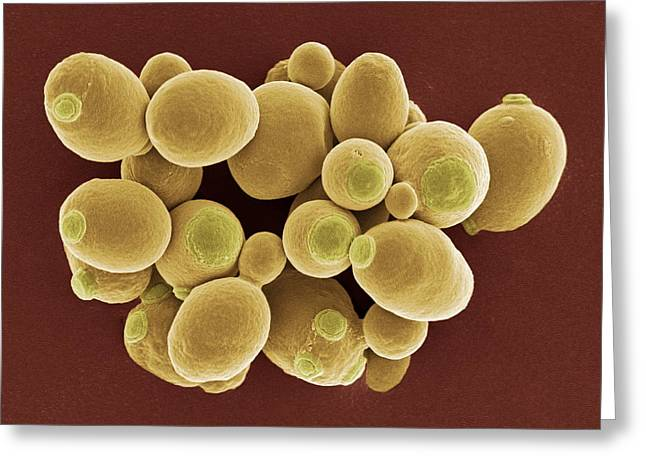 Yeast Cells, Sem Greeting Card by Steve Gschmeissner